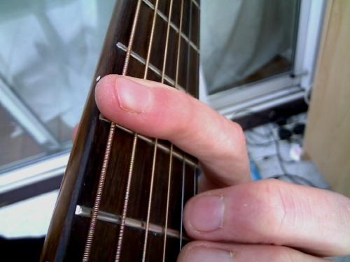 barred index finger
